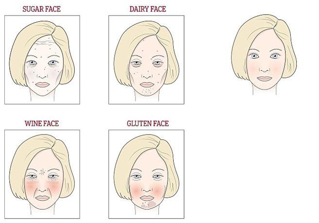 Miért jelennek meg fehér foltok az arcon, és veszélyes? - Bőrgyulladás