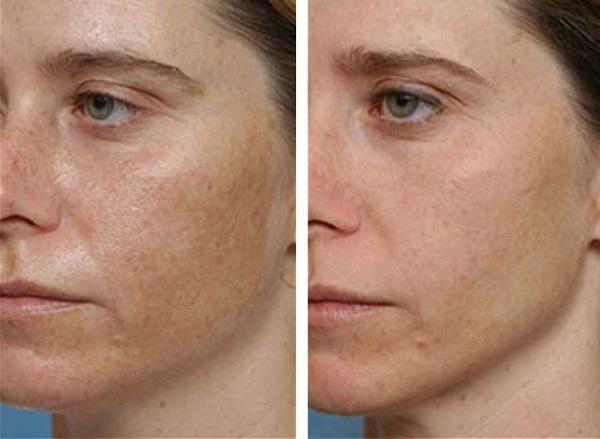 hogyan lehet eltávolítani a vörös foltokat a homlokáról