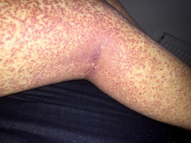 a lábán alul piros foltok)