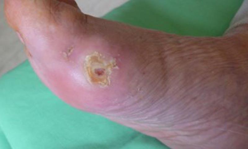 A lábfoltok okai cukorbetegségben - Fekély