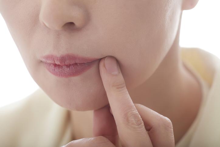 Az ajkak körüli gyulladás. A bőr szája körüli hámlásának okai és kezelése. A betegség fő típusai