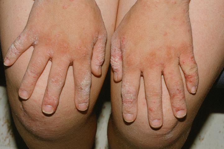 pikkelysömör kezelés immunofannal