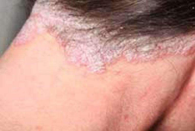 stacionárius pikkelysömör kezelés vélemények fejbőr psoriasis kezelése olívaolajjal