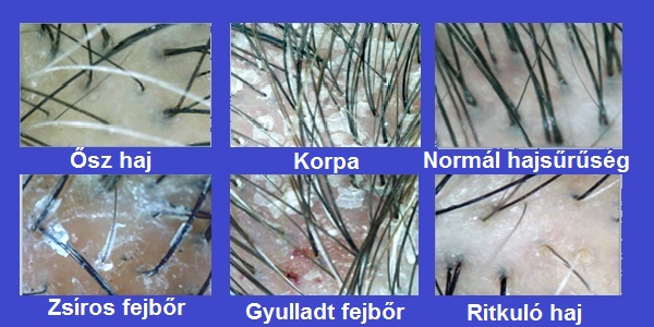 sebek vagy vörös foltok jelennek meg a fejbőrön