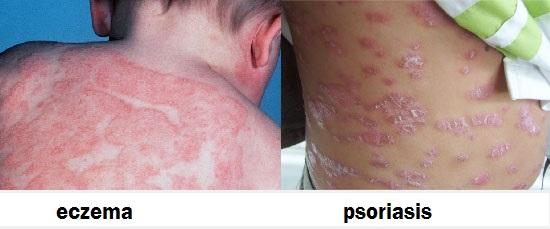 A pikkelysömör szakaszai - a stádiumtól függő kezelés - Tünetek