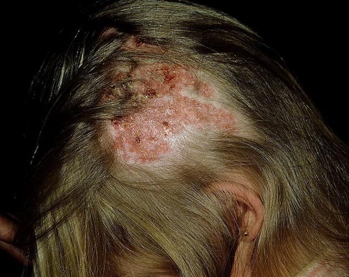 fejbőr pikkelysömör kezelése koplalással)