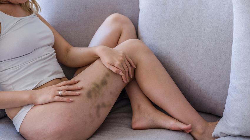 vörös foltok hólyagokkal és viszketéssel jelentek meg a testen calamine lotion reviews a pikkelysömörhöz