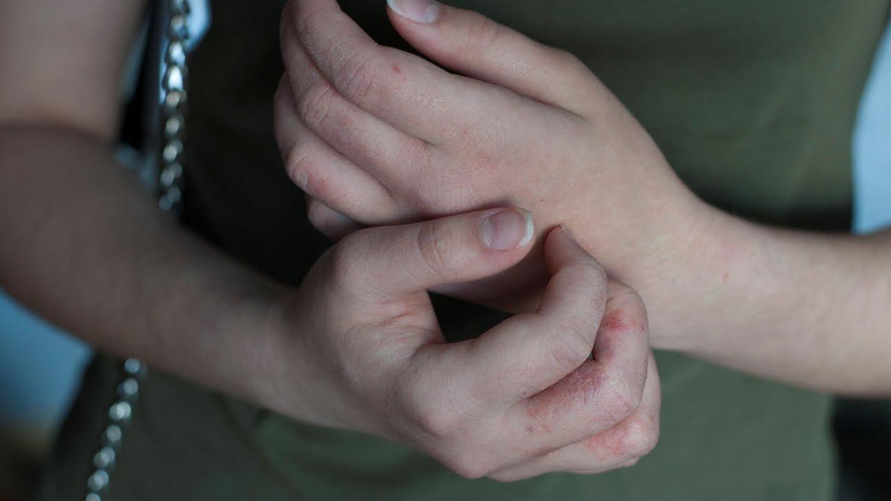 piros pikkelyes foltok a kezek fényképen