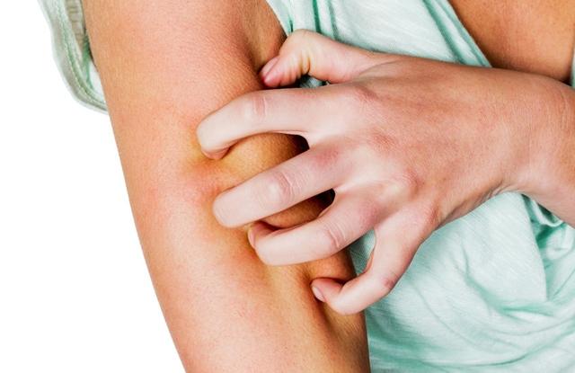 Atópiás dermatitis kezelési kenőcs