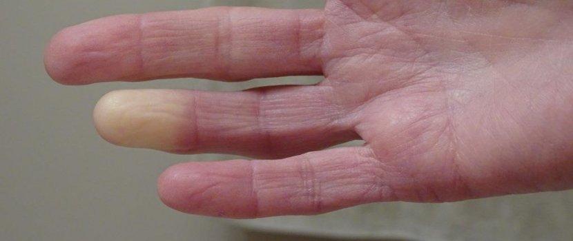kibaszott ujj kő pikkelysömör gyógyítása