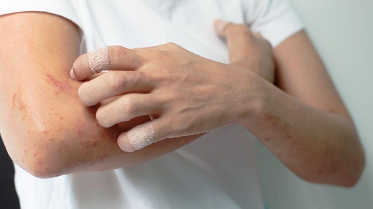 hogyan lehet kezelni az egyszer pikkelysömör vörös viszkető foltok a lábakon és a fenéken
