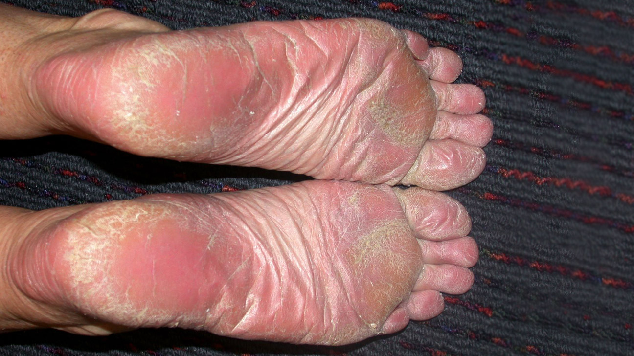 psoriasis on toes kezelés)