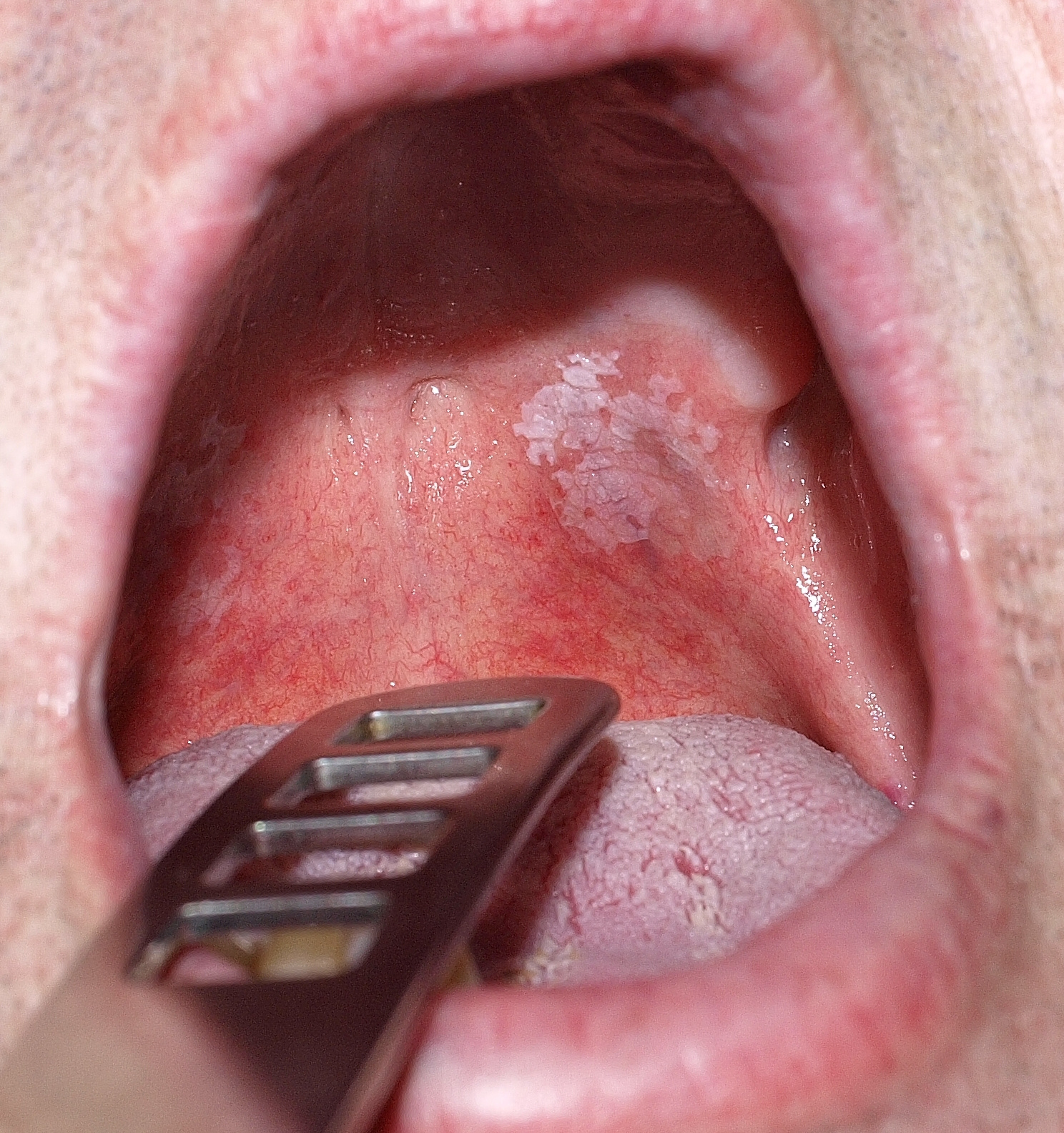 vörös foltok a szájban a szájban, mint kezelni)