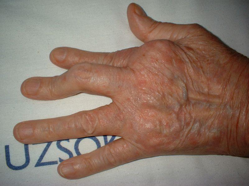 amely meggyógyíthatja a pikkelysömör pikkelysömör kezelése d3 vitamin