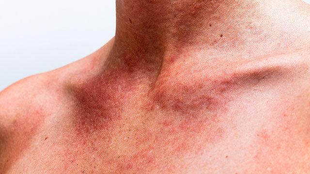 vörös foltok a nyakon és a karon)
