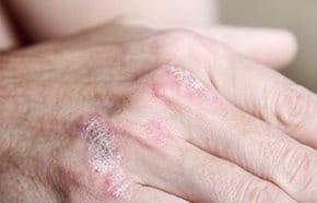 pikkelysömör kezelése karjaiban