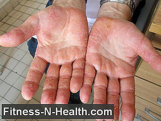 retinol pikkelysömör kezelésére vörös foltok a kezeken