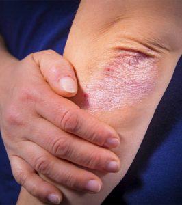 Mi is az a Pikkelysömör (psoriasis)?