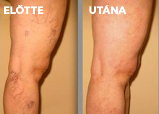 vörös foltok a lábakon visszér kenőcs kezelés