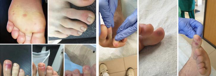 kitörések a lábak bőrén vörös foltok formájában a felnőttek fotóin