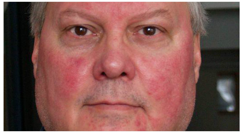 vörös foltok jelentek meg az arcon; peeling kezelés)