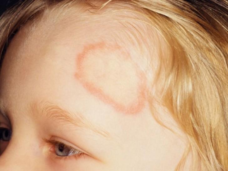 A gyermekek számára a zuzmó kenőcs a leghatékonyabb különféle típusú betegségek esetén