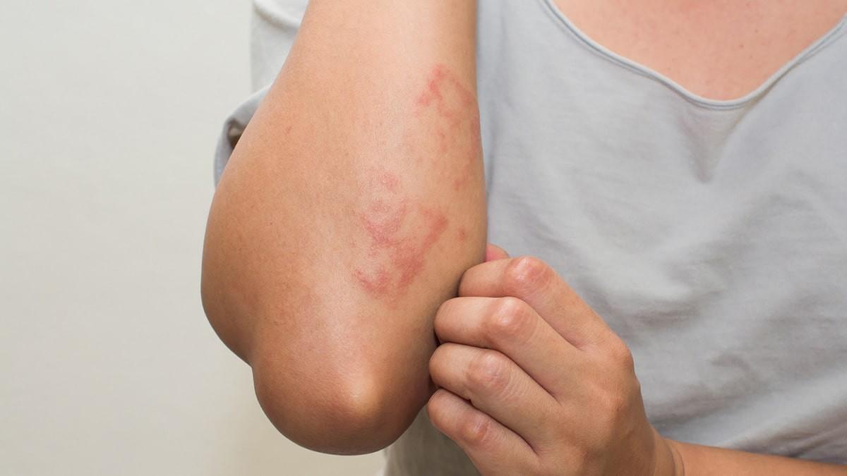 bőrkiütések vörös foltok formájában, viszketéssel a lábán)