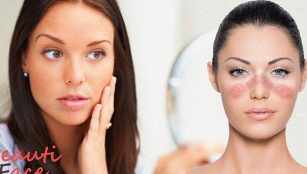 hogyan lehet megszabadulni a pelyhes vörös foltoktól az arcon