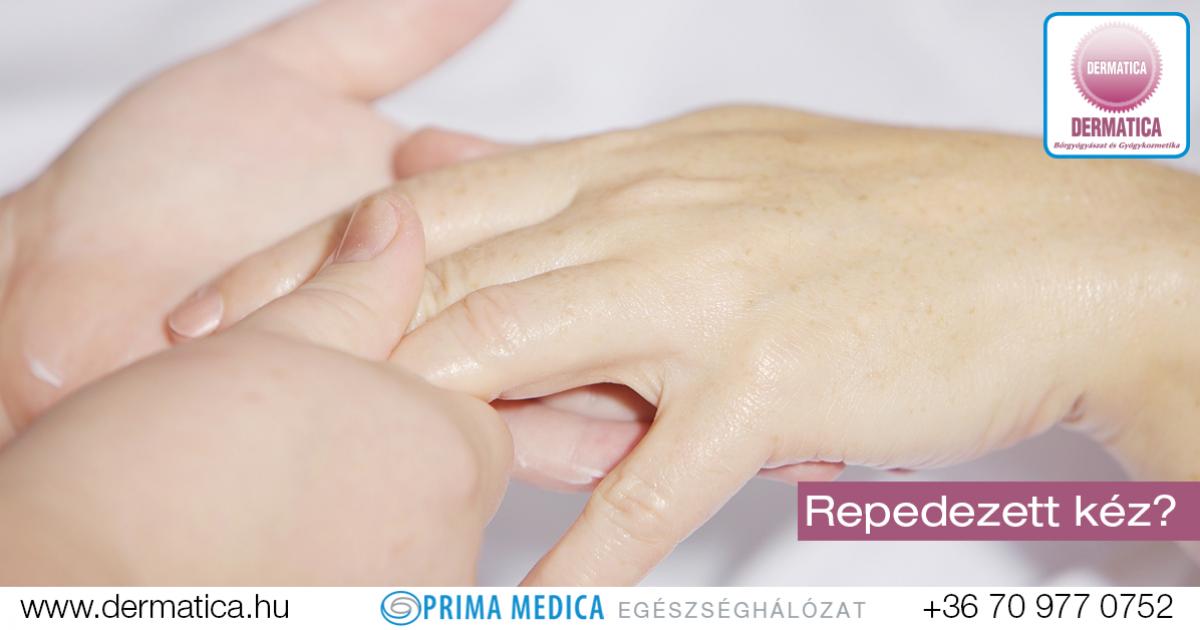 hogyan kezelik a kezek pikkelysömörét?