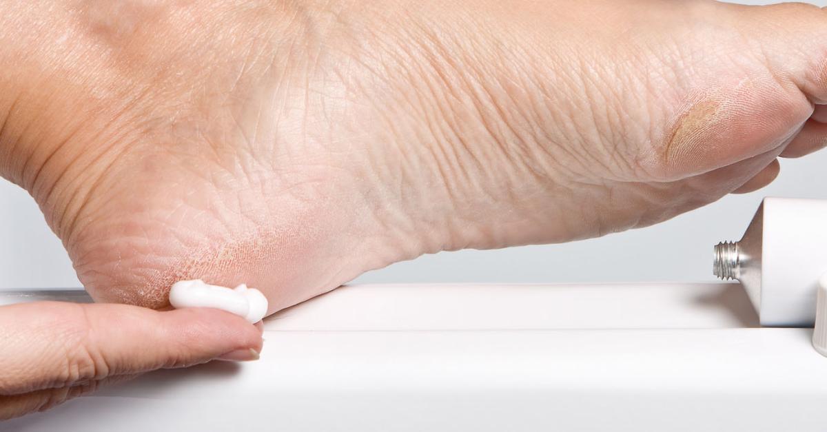 gyógyult pikkelysömör hidrogén-peroxid véleményekkel a könyökön a vörös folt viszket, mint kezelni