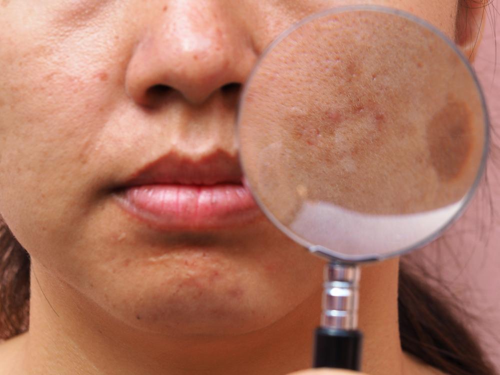 megfosztják a bőrt vörös foltok hogyan kell kezelni