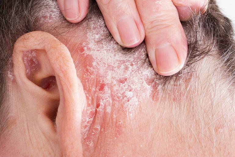 A hajas fejbőr psoriasisa