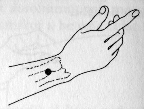 akupunktúra pikkelysömör kezelése)