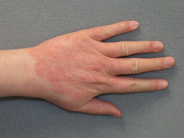 egy vörös folt jelent meg a kezén, mint kezelni)