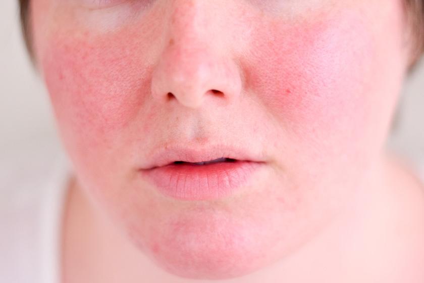 reggel arc vörös foltokkal