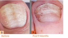 Psoriasis samponok - Bőrgyulladás November