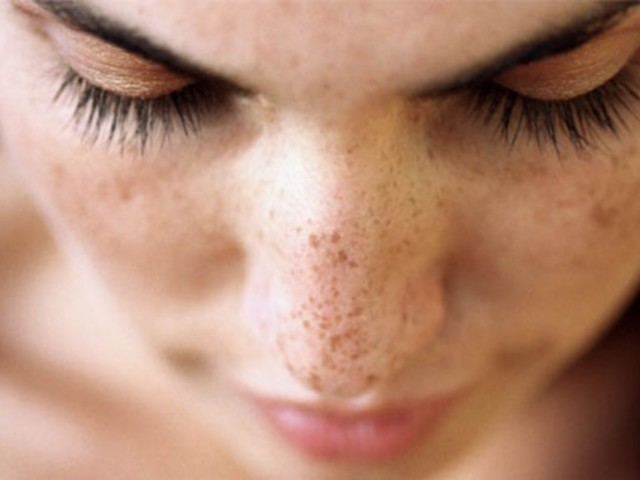Barna pigmentfoltok az arcon: így halványíthat rajtuk - EgészségKalauz