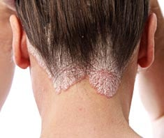 Pikkelysömör (pszoriázis, psoriasis) tünetei és kezelése