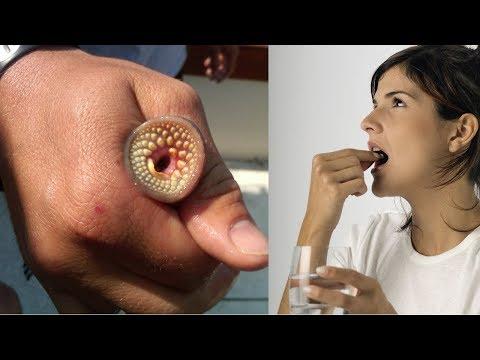 Antipszorias ar gyogyszertarakban - A cefotaxim psoriasisban lehetseges Вермокс таблетки от чего