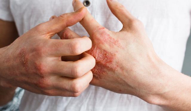 vörös pikkelyes foltok a kezeken és a lábakon viszketnek)