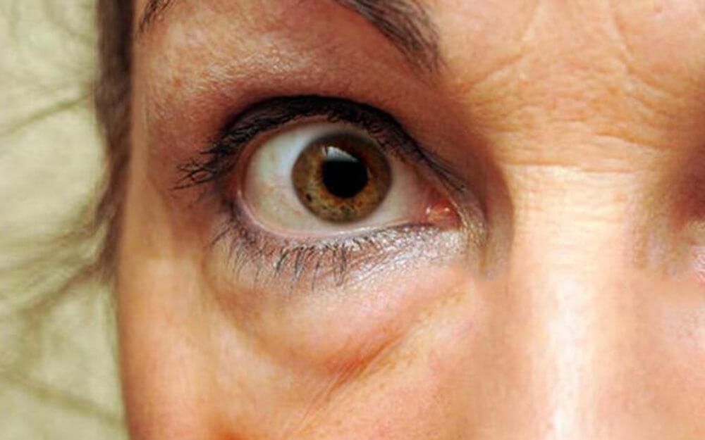 hogyan lehet eltávolítani az orr piros foltjait a bőrön lévő foltok barnák és vörösek