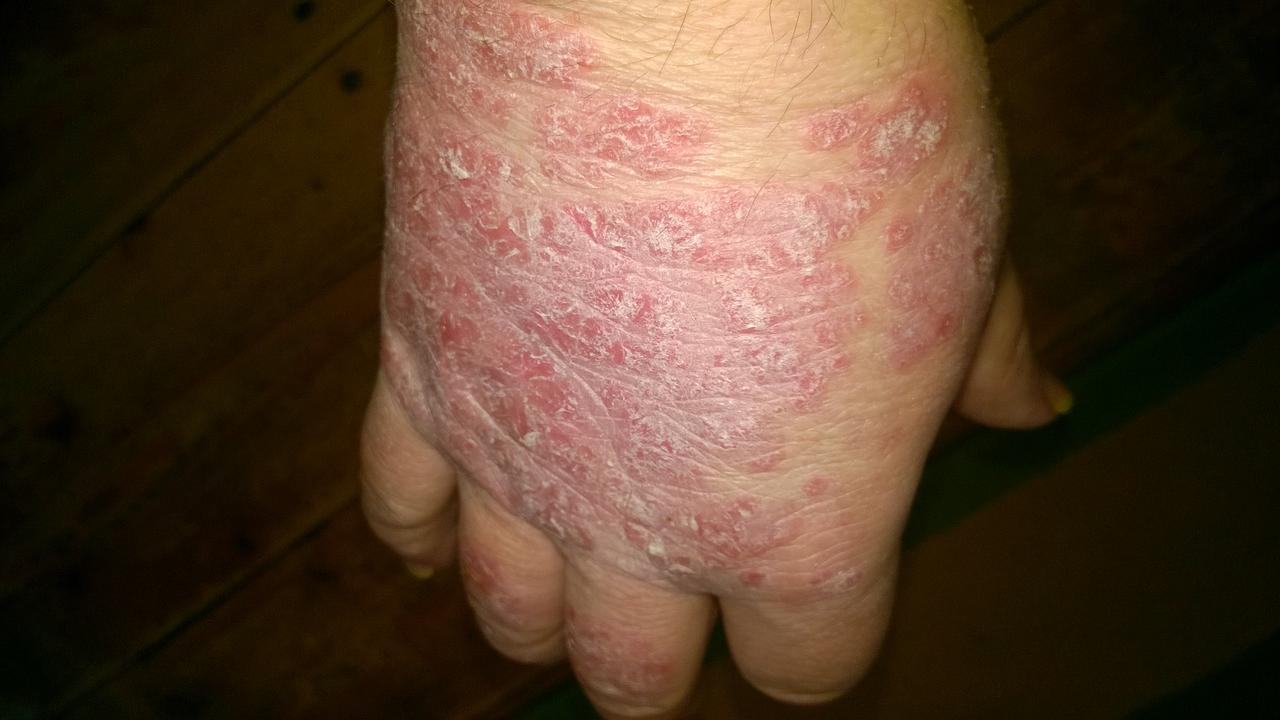 Gyógynövényes kezelési fórumok, Krém az osteochondrozisértékelésekhez