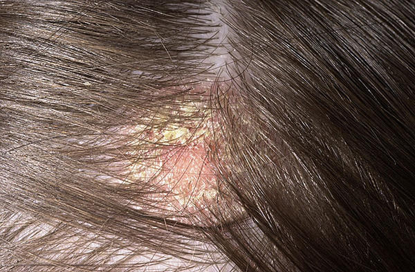 fejbőr irritáció vörös foltok)