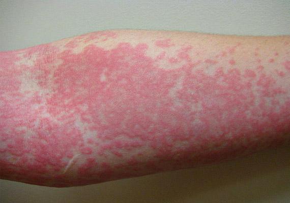 bőrkiütés vörös foltok formájában, hámlasztással vörös viszkető foltok a térd alatt