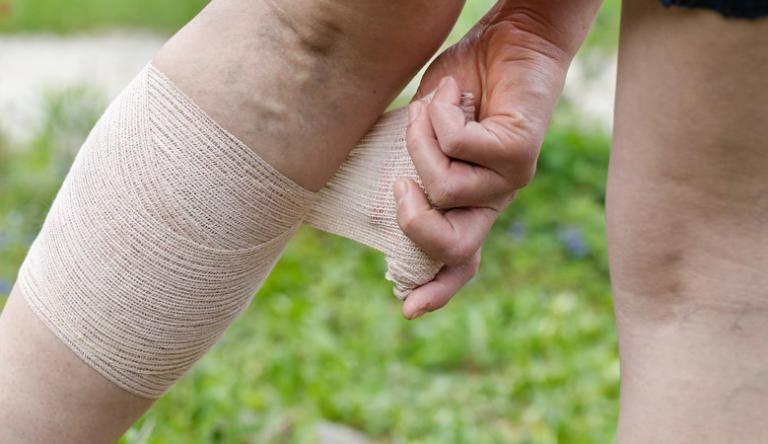 Pikkelysömöröm van és a lábam nagyon megdagadt, mint kezelni