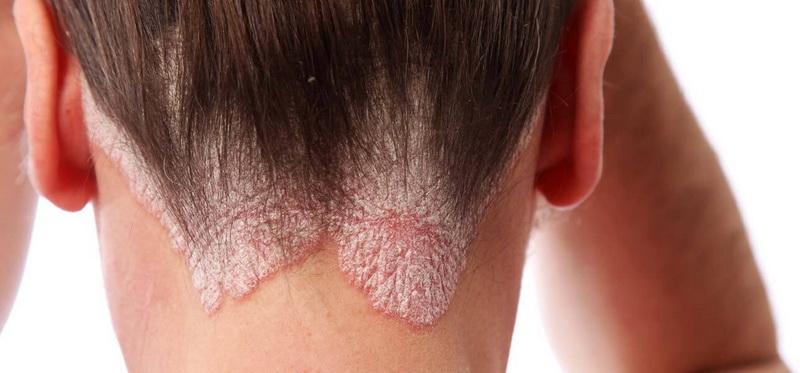 hogyan lehet ultraibolya lámpát használni a pikkelysömör kezelésére vörös foltok a fej hátsó részén egy felnőttnél, mint kezelni