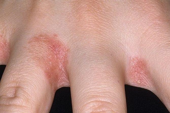 vörös foltokkal borított kezek