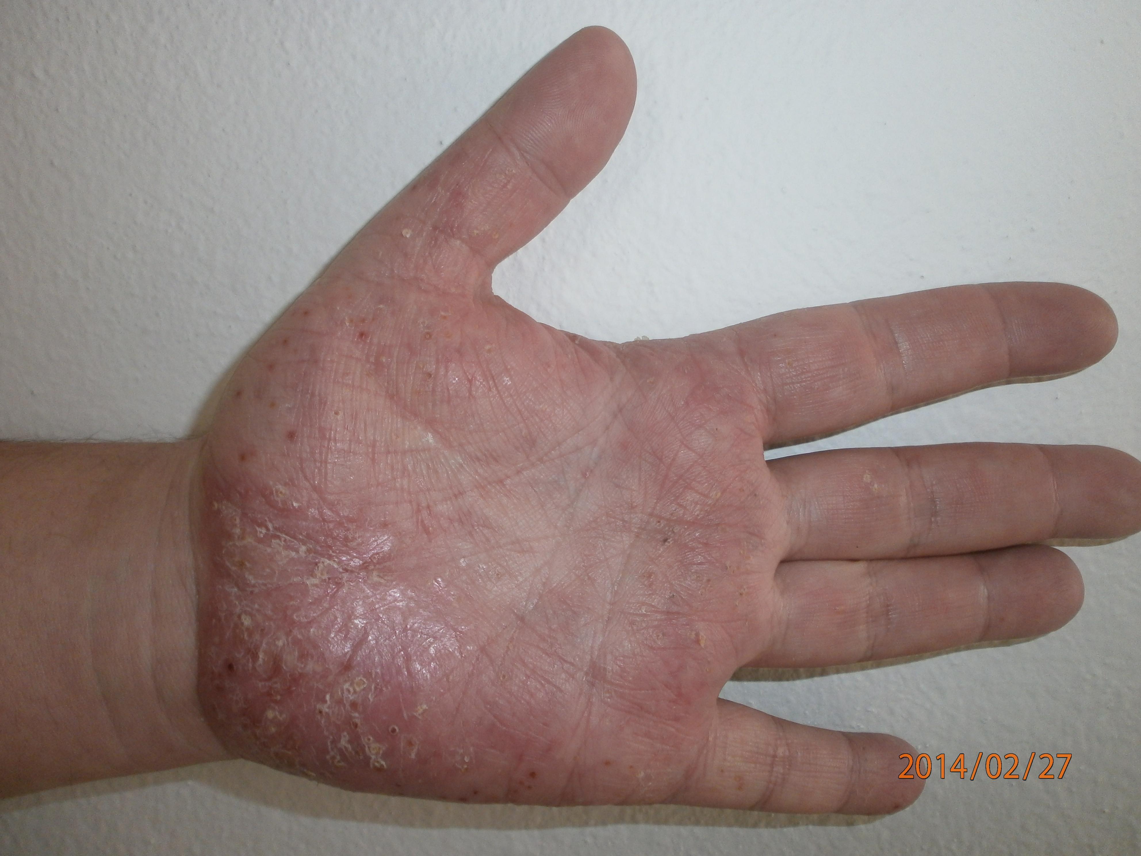 kenőcs a tenyér pikkelysömörének kezelésére celestoderm- kenőcsben vélemények pikkelysömörhöz