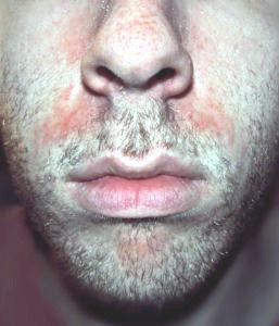 az arcon pikkelysömör hogyan kell kezelni a maszk után vörös foltok az arcon