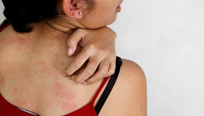 vörös foltok borítják a bőrirritációt